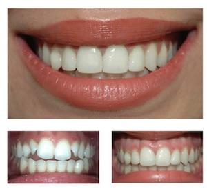 Teeth Bonding In Jackson & Teton Valley Low Cost Smile Fix